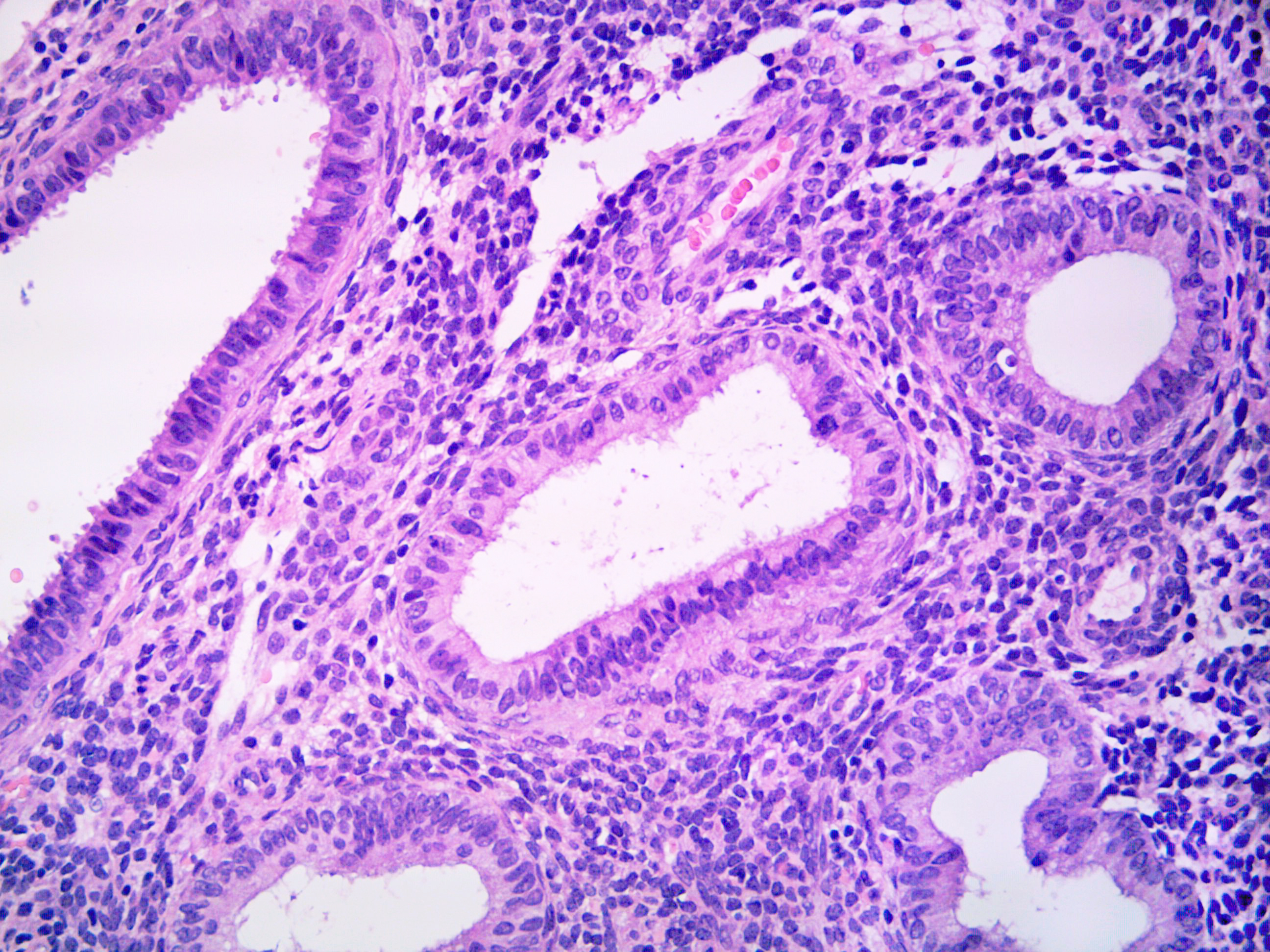 PAEC with low columnar inactivity and weakly secretory epithelium